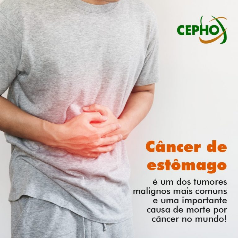 CEPHO - Câncer de estômago